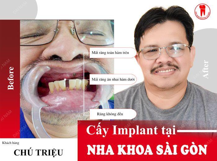 Khách hàng làm răng Implant tại Nha khoa Sài Gòn